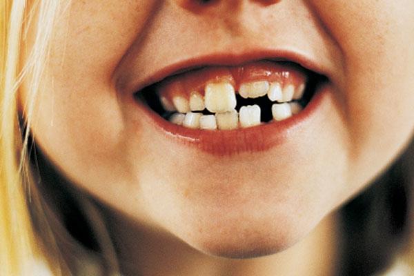 denti da latte2