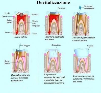 dente-devitalizzato-e-devitalizzazione-400x386
