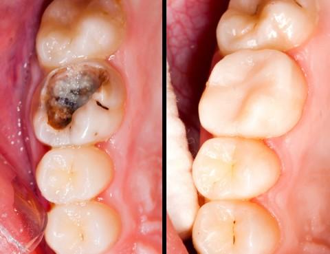 carie-denti1