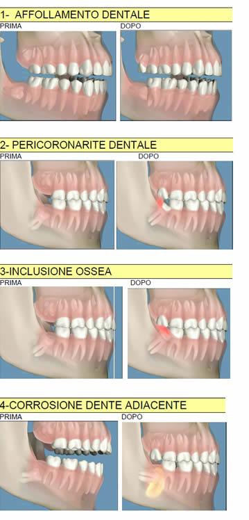 problemi-denti-giudizio